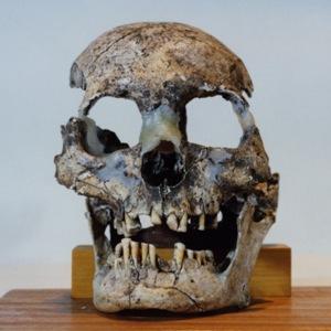 宮遺跡から出土した抜歯された人の頭蓋骨の写真です。